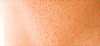 Rote Punkte auf Haut