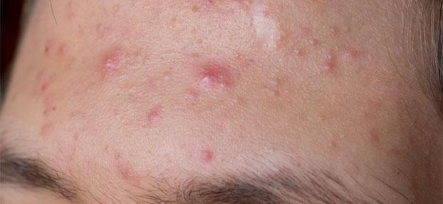 Akne - Behandlung in Wien bei Hautarzt Wien Dr. Okamoto