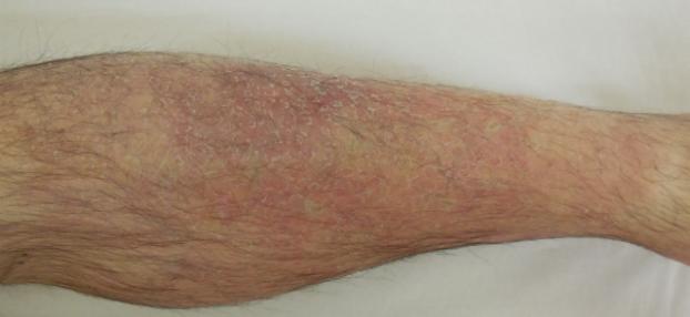 Ekzem nach einer Woche lokaler Behandlung bei Hautarzt Dr. Okamoto in Wien