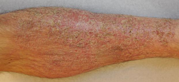 Ekzem-Behandlung bei Hautarzt Dr. Okamoto in Wien