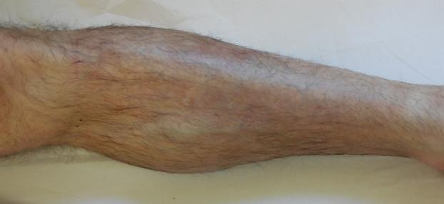 Ekzem nach 2 Woche lokaler Behandlung bei Hautarzt Dr. Okamoto in Wien