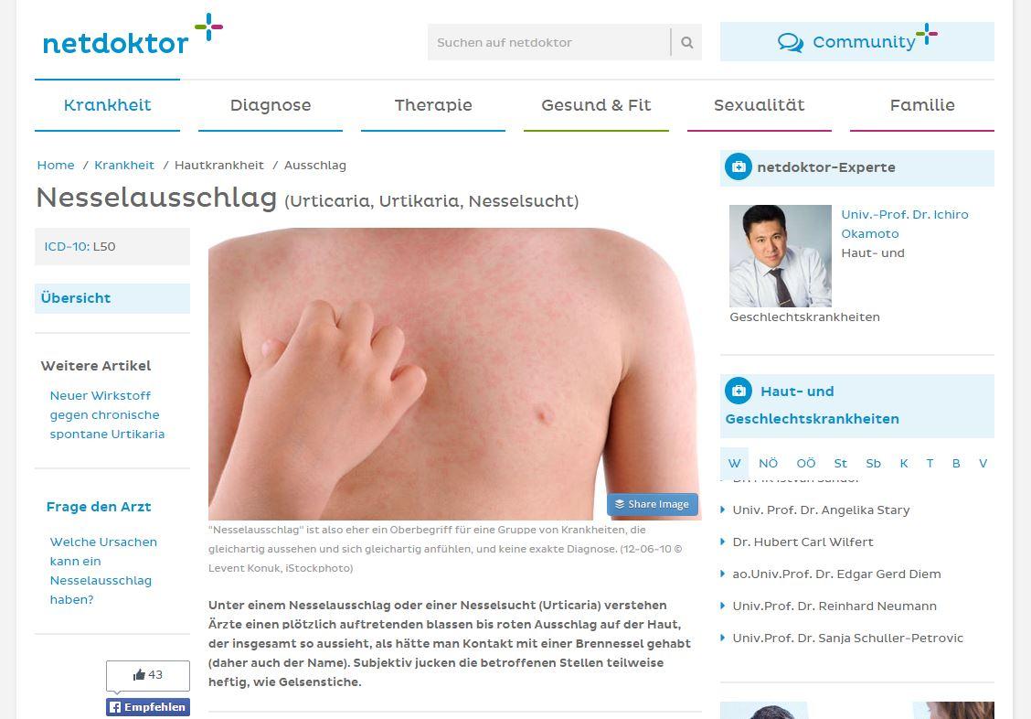 Behandlung von Nesselsucht in Wien bei Hautarzt Dr. Okamoto