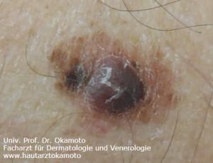 Melanom - Behandlung in Wien bei Hautarzt Prof. Dr. Okamoto