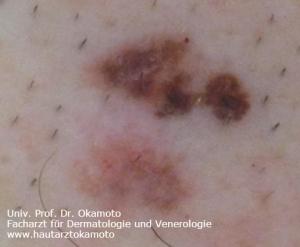 Melanom - Behandlung in Wien bei Hautarzt Dr. Okamoto