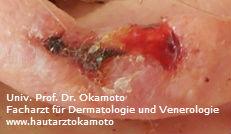Plattenepithelkarzinom - Behandlung in Wien bei Hautarzt Dr. Okamtoto