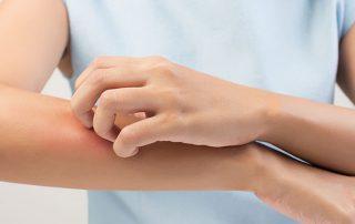 Behandlung von Schuppenflechte (Psoriasis) bei Hautarzt Prof. Dr. Okamoto in Wien