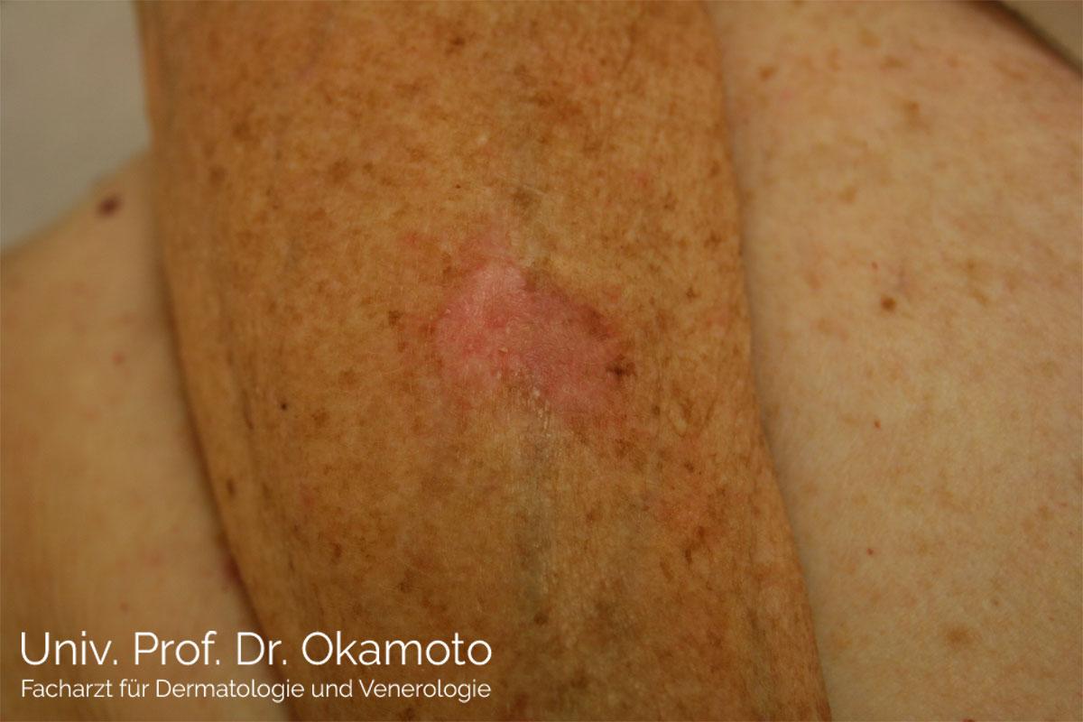 Basaliom - Behandlung in Wien bei Hautarzt Prof. Dr. Okamoto